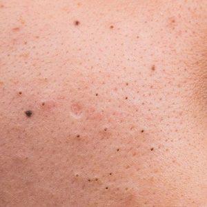 Koreanische Pflegeroutine für Großporige Haut
