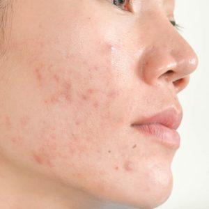 Koreanische Pflegeroutine für Olige Haut